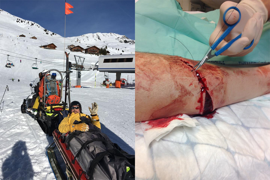 Chris Tomlinson piste injury